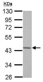 Western blot - Anti-G protein alpha 16 antibody (ab154157)