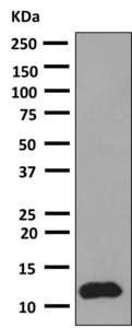 Western blot - Anti-CCL14 antibody [EP7727] (ab154174)