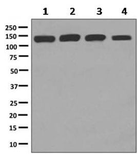 Western blot - Anti-Isoleucyl tRNA synthetase antibody [EPR10267] (ab154175)