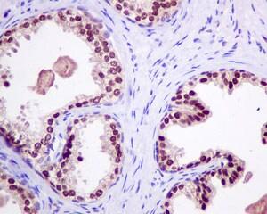 Immunohistochemistry (Formalin/PFA-fixed paraffin-embedded sections) - Anti-RBM47 antibody [EPR9659] (ab154176)