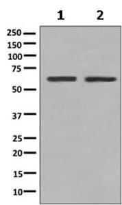 Western blot - Anti-PGM2 antibody [PGM2] (ab154180)