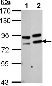 Western blot - Anti-PARN antibody (ab154214)