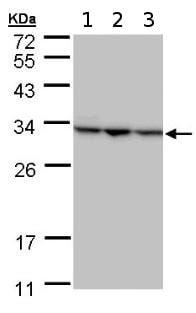 Western blot - Anti-Shwachman Bodian-Diamond syndrome antibody (ab154222)