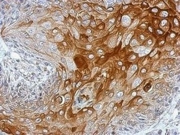 Immunohistochemistry (Formalin/PFA-fixed paraffin-embedded sections) - Anti-PC1/3 antibody (ab154246)