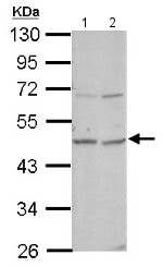 Western blot - Anti-OMD antibody (ab154249)