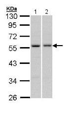 Western blot - Anti-PAX6 antibody (ab154253)
