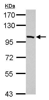 Western blot - Anti-PDE11A antibody (ab154273)