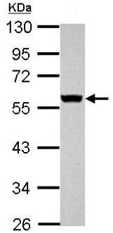 Western blot - Anti-Cytokeratin 8 antibody (ab154301)