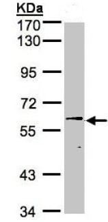 Western blot - Anti-Steroid sulfatase antibody (ab154312)