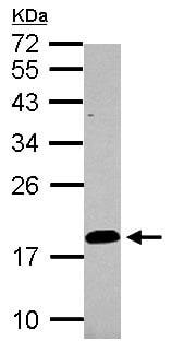 Western blot - Anti-LCN15 antibody (ab154329)