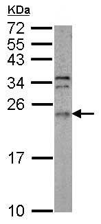 Western blot - Anti-ARL3 antibody (ab154344)