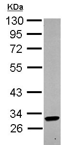 Western blot - Anti-KIR2DL4 antibody (ab154386)