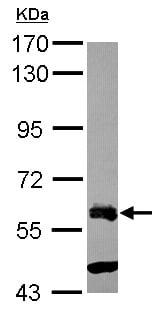 Western blot - Anti-ZNF181 antibody (ab154398)
