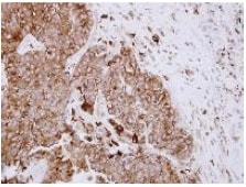 Immunohistochemistry (Formalin/PFA-fixed paraffin-embedded sections) - Anti-ASAH1 antibody (ab154401)