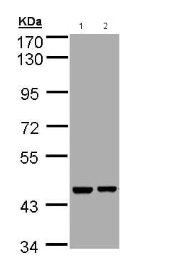 Western blot - Anti-Aprataxin antibody (ab154413)