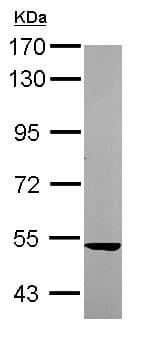 Western blot - Anti-SARS2 antibody (ab154483)