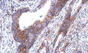Immunohistochemistry (Formalin/PFA-fixed paraffin-embedded sections) - Anti-SARS2 antibody (ab154483)