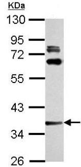 Western blot - Anti-LAX1 antibody (ab154491)