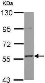 Western blot - Anti-AF9 antibody (ab154492)