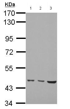 Western blot - Anti-MMP19 rasi6 antibody (ab154496)