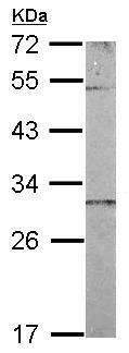 Western blot - Anti-CHCHD3 antibody (ab154500)