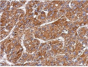 Immunohistochemistry (Formalin/PFA-fixed paraffin-embedded sections) - Anti-MMP8 antibody (ab154507)