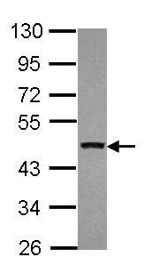 Western blot - Anti-MLLT6 antibody (ab154513)
