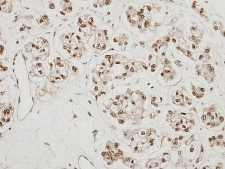 Immunohistochemistry (Formalin/PFA-fixed paraffin-embedded sections) - Anti-NCBP1 antibody - N-terminal (ab154532)