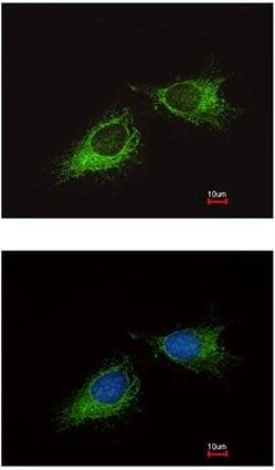 Immunocytochemistry/ Immunofluorescence - Anti-MRPS23 antibody (ab154533)