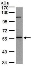 Western blot - Anti-NEK3 antibody (ab154536)