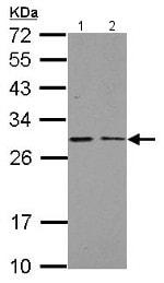 Western blot - Anti-NDUFS3 antibody (ab154543)