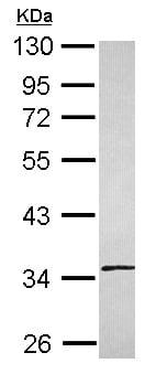 Western blot - Anti-SLC25A36 antibody (ab154559)