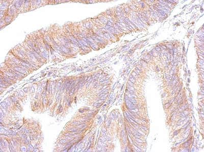 Immunohistochemistry (Formalin/PFA-fixed paraffin-embedded sections) - Anti-ATP5F1 antibody (ab154564)