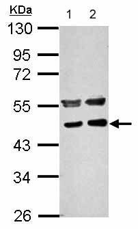Western blot - Anti-PPME1 antibody (ab154569)