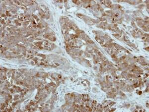 Immunohistochemistry (Formalin/PFA-fixed paraffin-embedded sections) - Anti-PFKFB1 antibody (ab154573)
