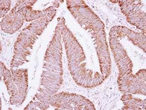 Immunohistochemistry (Formalin/PFA-fixed paraffin-embedded sections) - Anti-ATP5F1 antibody (ab154599)