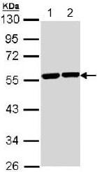 Western blot - Anti-TUBA8 antibody (ab154612)