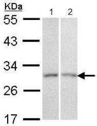 Western blot - Anti-CEACAM6 antibody (ab154614)