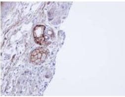 Immunohistochemistry (Formalin/PFA-fixed paraffin-embedded sections) - Anti-CEACAM6 antibody (ab154614)