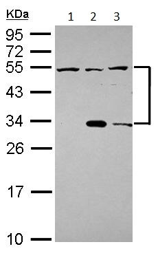 Western blot - Anti-CECR1 antibody (ab154619)