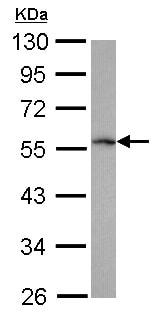 Western blot - Anti-TRIM62 antibody (ab154635)