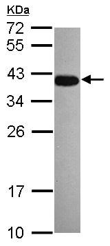 Western blot - Anti-Dppa4 antibody (ab154642)