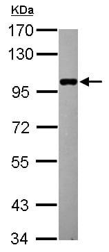 Western blot - Anti-STATIP1 antibody (ab154643)