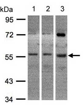 Western blot - Anti-ADCK1 antibody (ab154646)