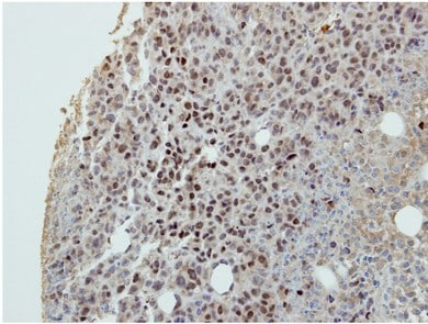 Immunohistochemistry (Formalin/PFA-fixed paraffin-embedded sections) - Anti-DIP13B antibody - C-terminal (ab154661)