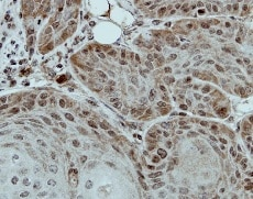Immunohistochemistry (Formalin/PFA-fixed paraffin-embedded sections) - Anti-DDX28 antibody (ab154667)
