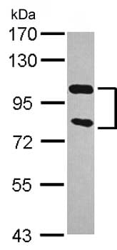 Western blot - Anti-ZCCHV antibody (ab154680)