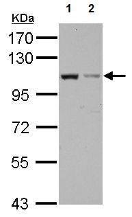 Western blot - Anti-EXOC2 antibody (ab154688)