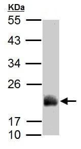 Western blot - Anti-ADI1 antibody (ab154689)
