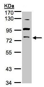 Western blot - Anti-PKC gamma antibody (ab154690)